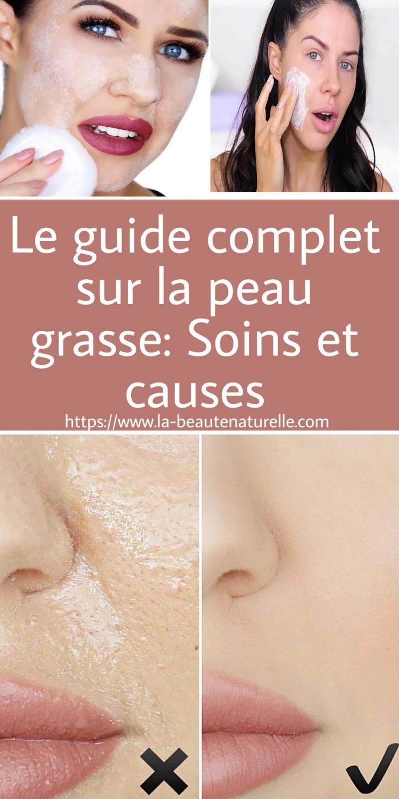 Le guide complet sur la peau grasse: Soins et causes