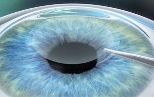 متى تتحسن الرؤية بعد عملية زرع العدسة؟