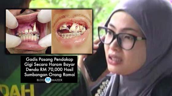 Gadis Pasang Pendakap Gigi Secara Haram Bayar Denda RM 70,000 Hasil Sumbangan Orang Ramai