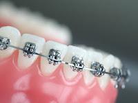 Lowongan Kerja Orthodontic Dental Care