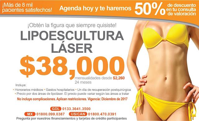 Lipoescultura Laser Guadalajara Mexico