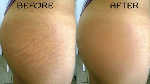 5 Ways To Get Rid Of Your Butt Marks (Stretch Marks)