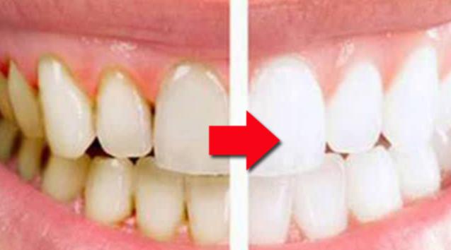 10 Cara Menghilangkan Karang Gigi Sendiri Tanpa Harus Ke Dokter