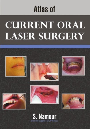 Atlas Of Current Oral Laser Surgery - S. Namour - © 2011.PDF