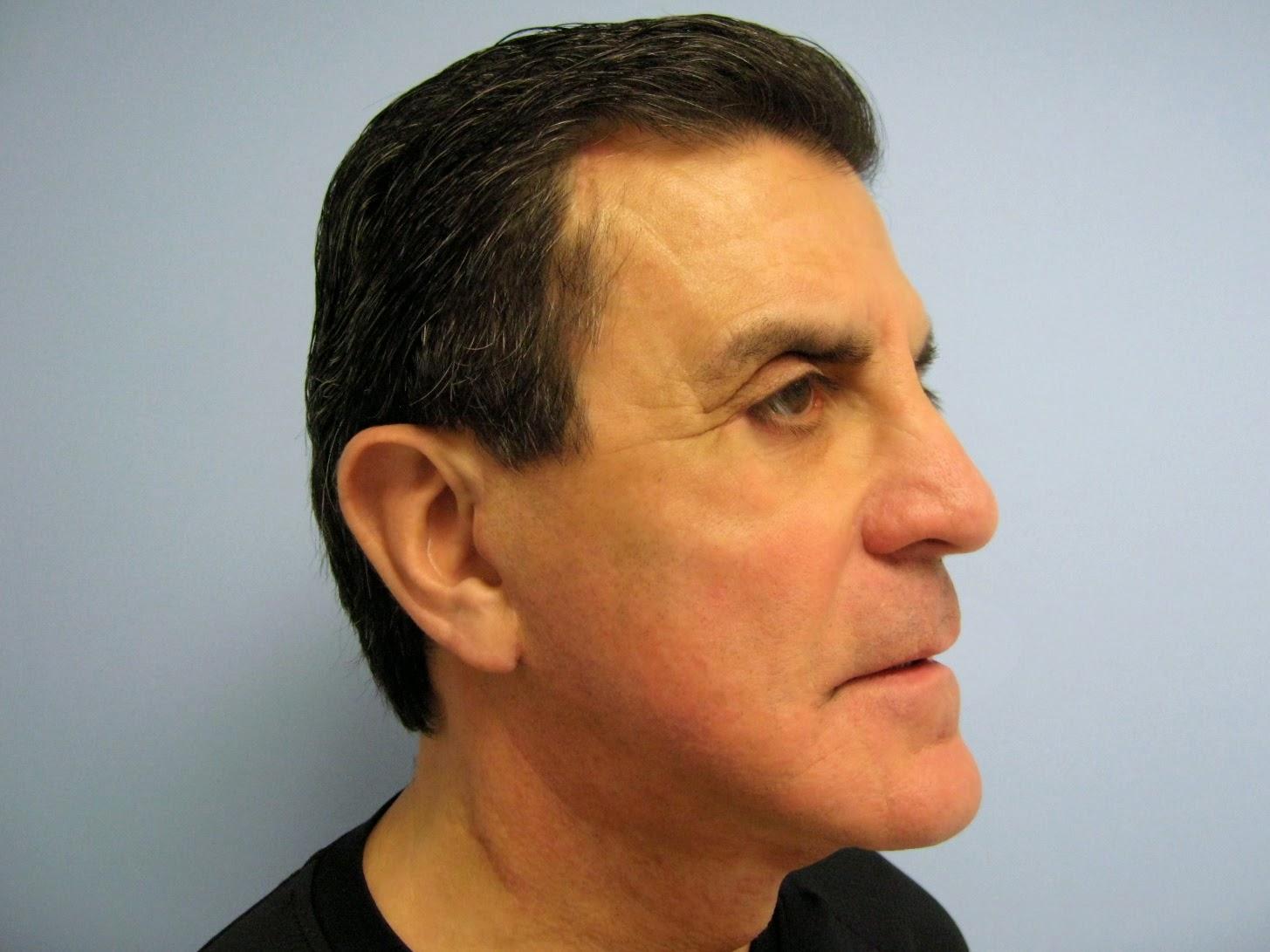 Cosmetic Surgeon Chicago | Plastic Surgery In Chicago Il - David