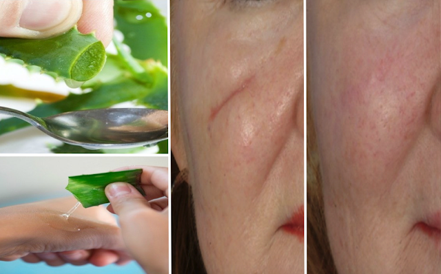 Secrets On How to Get Rid of Scars Effectively in Natural Way