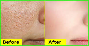 how to clear pores permanently