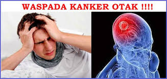Obat kanker otak, obat kanker otak tradisional, obat kanker otak stadium 4, obat kanker otak stadium 2, obat kanker otak stadium 1,