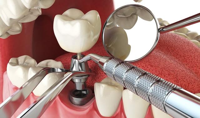 Procédures dentaires expliquées