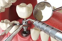 Les procédures dentaires expliquées