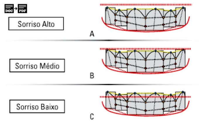 PDF: Estética em Ortodontia: 6 linhas horizontais do sorriso