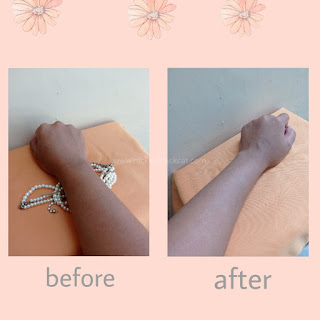 Before after penggunaan Scarlett Whitening body care