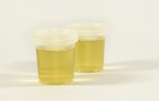 Urine परीक्षण (Test) से पहले प्यास न हो