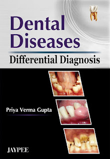Dental Diseases Differential Diagnosis