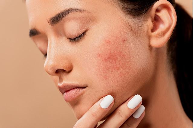 Moisturizer with acne star