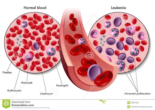 Leukemia adalah jenis kanker darah yang paling berbahaya di dunia