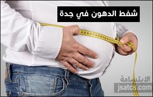 أسعار عمليات شفط الدهون في جدة