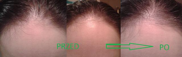 Vianek tonik wcierka do skóry głowy naturalne kosmetyki wypadanie włosów szybszy porost efekt