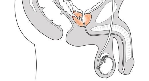 irritación de la próstata después de la eyaculación