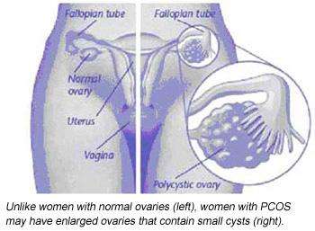 polycysticovary