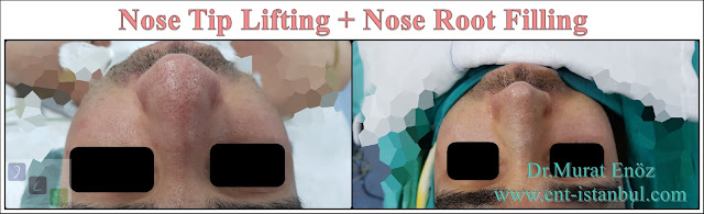 Nose tip lifing in Istanbul,Nose root filling with underskin tissue,Rhinoplasty without breaking the bone, Nose tip plasty in men, Natural nose aesthetic surgery for male