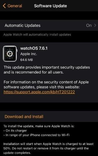 watchOS 7.6.1 Features