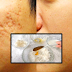 How To Get Rid Of Large Pores And Deep Scars Naturally And Permanently With Rice, Milk and Honey