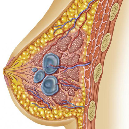 Breast Cancer Lumps Characteristics