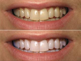وصفة لتبيض الاسنان من الصفار