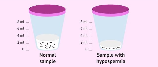 Hypospermia : Pengertian, Penyebab & Pengobatan