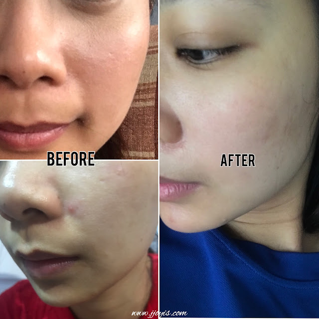 meiji premium collagen review before after skin does it work