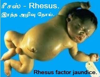 Rhesus factor jaundice