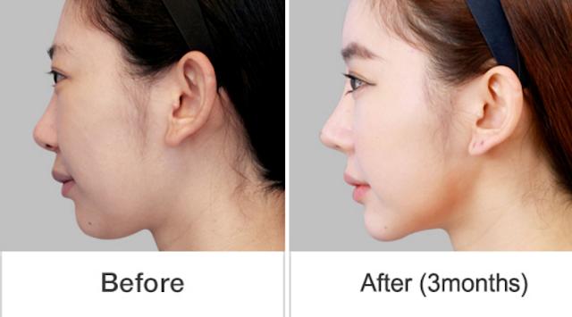 짱이뻐! - Wonjin Plastic Surgery Korea, Wow! Fantastic S-Line!