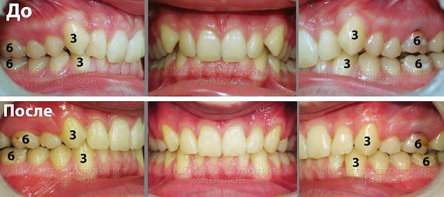 Функциональный прикус после ортодонтического лечения