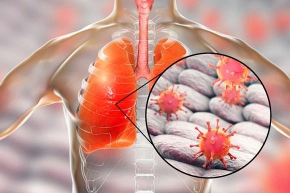 Virus corona - Covid-19 có thể trốn sâu trong phổi sau khi bệnh nhân hồi phục
