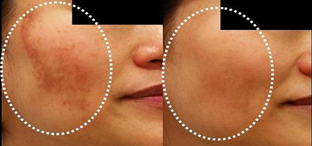 طريقة رائعة للتخلص من البقع الداكنة في الوجه في 20 دقيقة فقط