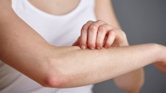 Síntoma de ansiedad por sensación de ardor en la piel