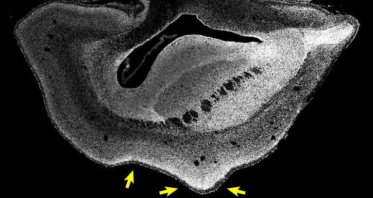 Tes memasukkan gen manusia ke dalam otak monyet menunjukkan hasil yang mengesankan