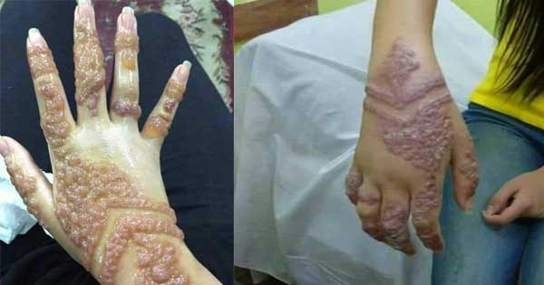 Henna Tattoo Infection: This Lady Apply Henna Tattoo For Traditions, The Side