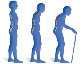 8. Melindungi Anda dari Osteoporosis dan Arthritis.