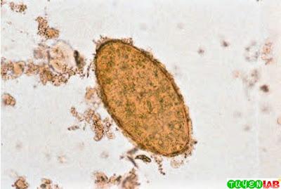 Fasciola hepatica/Fasciolopsis buski egg.