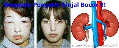 obat yang ampuh untuk mengatasi ginjal bocor sampai sembuh