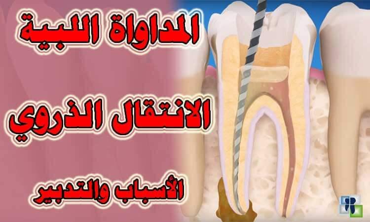 مشاكل علاج عصب الأسنان وتدبير انتقال الذروة أثناء التحضير