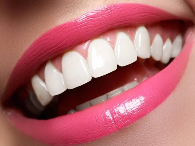 How To Obtain White And Healthy Teeth, Healthy Teeth, Health