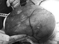 Ditunggu 9 Bulan Bayi Tidak Juga Lahir, Setelah Dioperasi Sangat Mengejutkan