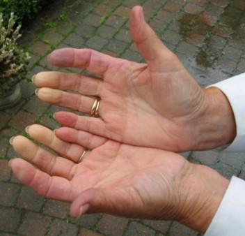 Mengenal Penyakit Skleroderma Pada Jaringan Tubuh Anda