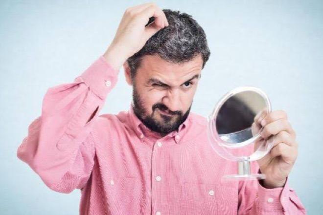 Mitos atau Fakta? Cabut Uban Bikin Rambut Putih Bertambah Banyak