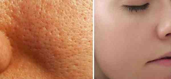 مسامات الوجه كيف تروح