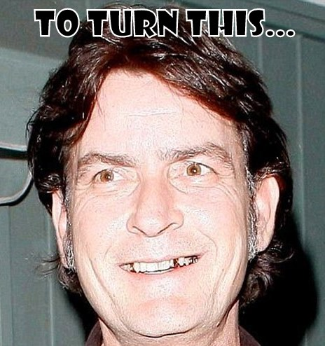 charlie sheen plastic surgery before and after nose job