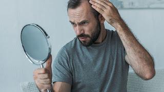 العناية بالشعر,زراعة الشعر,تساقط الشعرمن الجذور,علاج تساقط الشعرعند الرجال